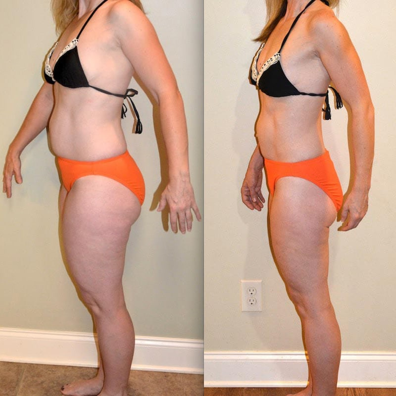 lose abdominal fat for women